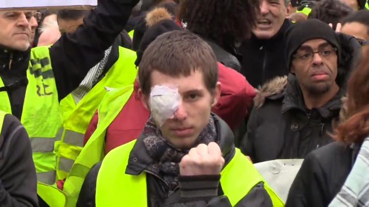 'Chalecos amarillos' recuerdan a los heridos en las protestas