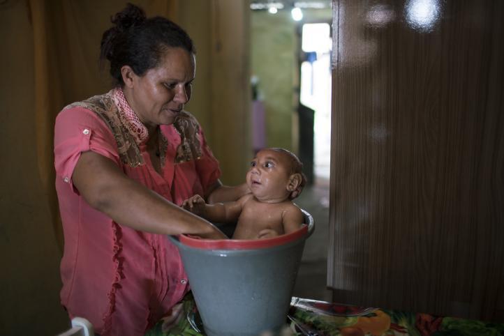 La historia de José, un bebé que padece de microcefalia