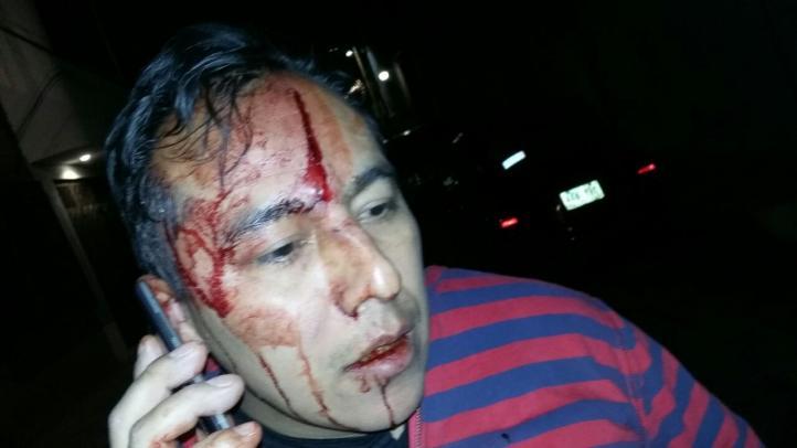 Desalojo del mercado Río Frío; hay varios heridos, uno hospitalizado
