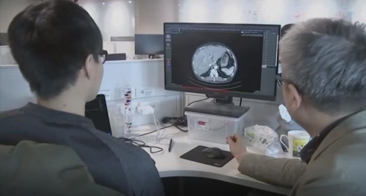 Inteligencia Artificial reduce el tiempo de diagnóstico de tumores