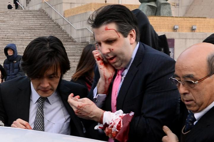 Embajador de EU atacado en Corea del Sur se encuentra estable