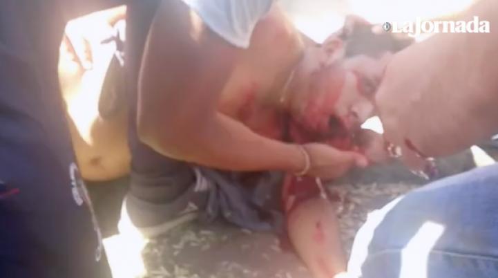 Policía balea a normalistas de Tiripetío; uno está herido en la cabeza