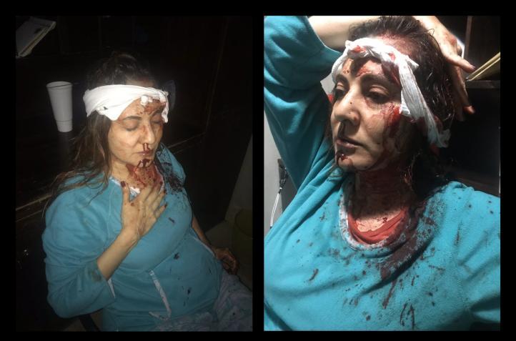 Hija de Abril Pérez difunde fotos de agresión a su madre.